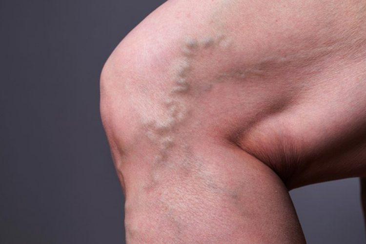 secretul paracetelor din varicoză